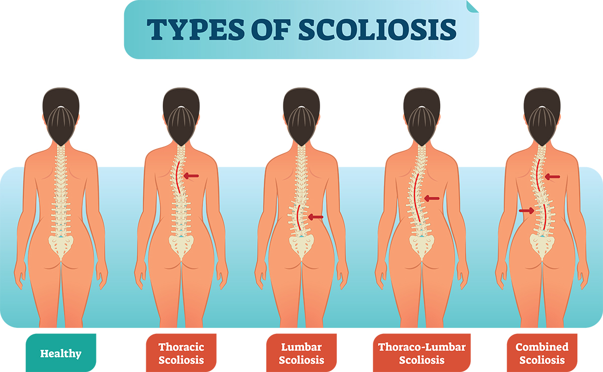 Why Practicing Yoga May Be Good For Scoliosis