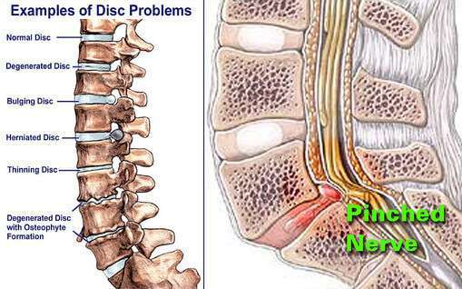 Diagram displaying various different disc problems.