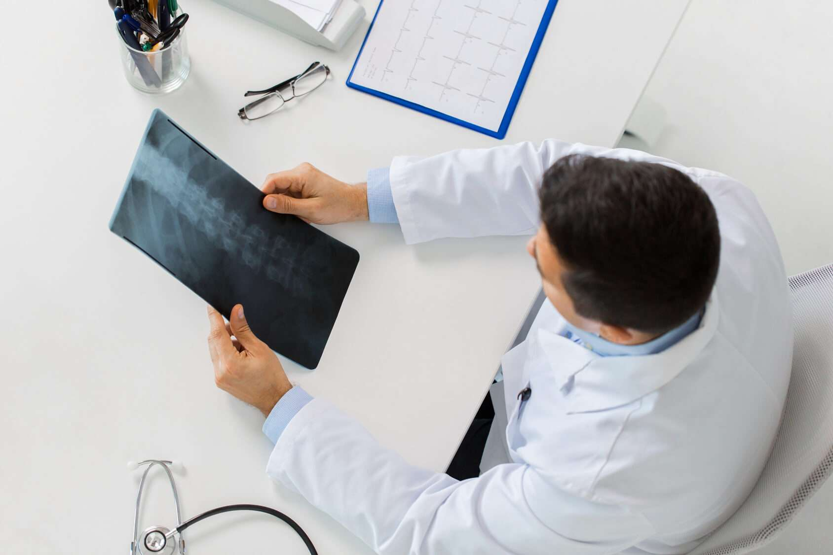Doctor reviewing spinal x-ray.
