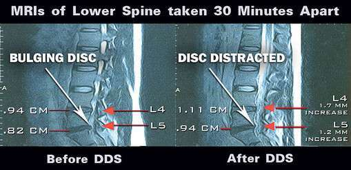 Before and after photo depicting the effectiveness of the DDS 500.