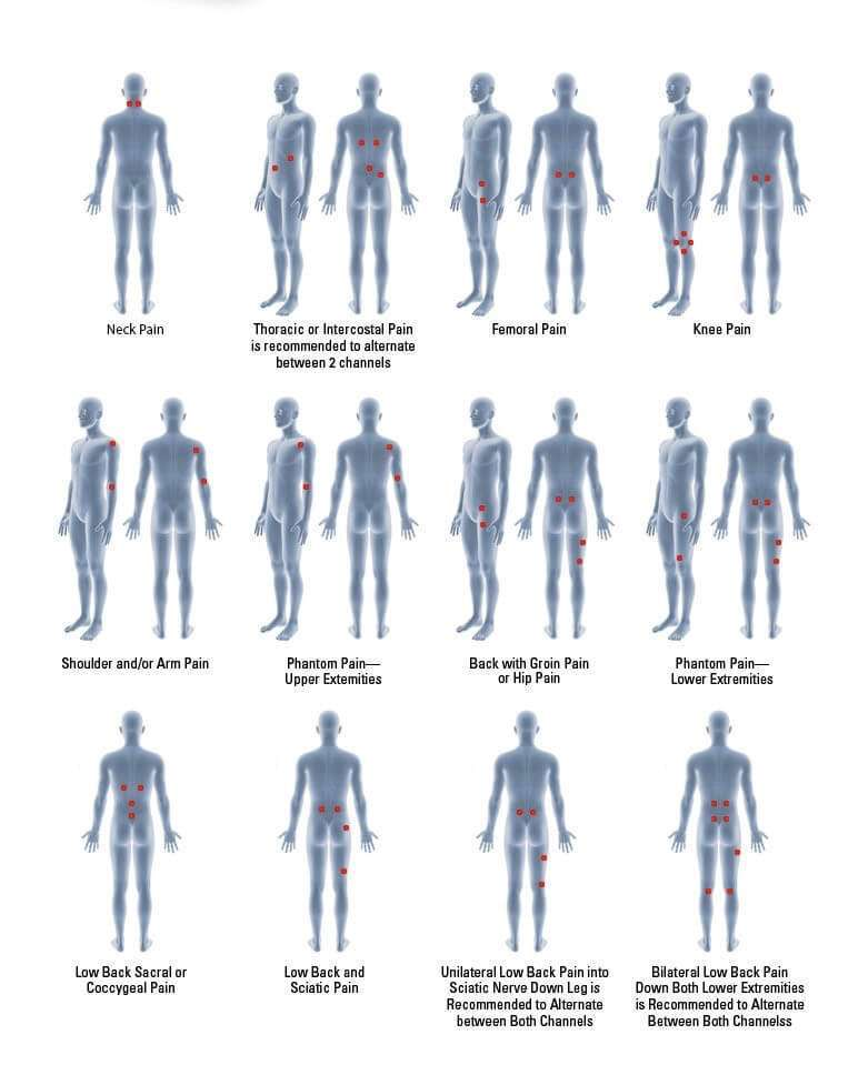 Diagram shows different electrode points on human body.